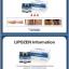 Lipozen ( body cellulite ) thumbnail 2