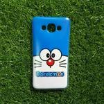 TPU ใสเส้นนูนแมวสีฟ้าตาโต E7