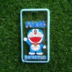 TPU ใสขอบสีฟ้าลายนูนแมวสีฟ้าเต็มตัว Note3