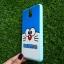 TPU ลายเส้นนูนแมวสีฟ้าตาโต Note3 thumbnail 2