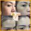 Amado JI Triple Anti Acne Soap สบู่อมาโด้ เจไอ ทริปเปิ้ล แอนตี้ แอคเน่ thumbnail 8