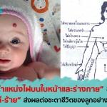 ตำแหน่งไฝ บนใบหน้าและร่างกาย ของลูกน้อย บอกถึงอะไร?