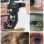 5 โรคตาพบบ่อยสุดในผู้สูงอายุ