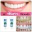 Hydent ยาสีฟันไฮเด็นท์ thumbnail 3