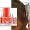 การรักษาด้วยแสง (Phototherapy): พื้นฐานของหวีเลเวอร์ HairMax LaserComb ในการเป็นการรักษาผมร่วง