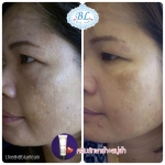 ครีมลดฝ้า GG PLUS VITACREAMA CLEAR DARK SPOT