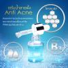 เซรั่มน้ำลายผึ้ง Anti Acne (สูตรลดสิว)