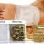 DT02 **พร้อมส่ง** (ปลีก+ส่ง)Detox Foot Patch แผ่นแปะเท้าดูดสารพิษ แผ่นดูดสารพิษออกจากฝ่าเท้า กล่องเล็ก ส่งกล่องละ 110 บ. thumbnail 8