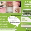 Acnix Anti - Acne Whitening Mask มาร์ค แอคนิก แอนตี้ แอคเน่ ไวท์เทนนิ่ง มาร์ค มาส์กรักษาสิว thumbnail 5
