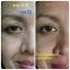 Fidela Anti Aging Serum Fidela ฟิเดล่า เซรั่มโบท็อกซ์ ขนาดบรรจุ (27 ml.) thumbnail 12