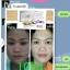 ครีมมินโซว (mix'nzol) ครีมหน้าขาวมินโซว นำเข้าจากฮ่องกง thumbnail 6