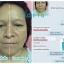 Fidela anti-aging serum ฟิเดล่า เซรั่มหน้าเด็ก ส่งฟรี EMS thumbnail 9