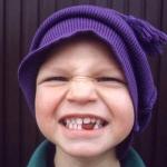 NATIVE HEALTHY TIP : น้ำมันมะพร้าวป้องกันฟันผุได้จริงหรือ?