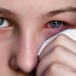 โรคตาแดง อาการโรคตาแดง