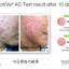 Nutriva AC For Acne นูทริว่า เอซี ฟอร์ แอคเน่ ลดสิว ควบคุมความมัน รูขุมขนกระชับ thumbnail 5