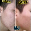 MJ Plus Feel the Difference Miracle Just for Skin 30 ml. ที่สุดของความขาวใส บอกลาฝ้า กระ thumbnail 7